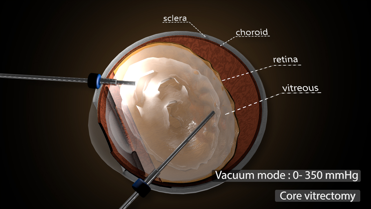 Vitrectomy – Dr P Stalmans